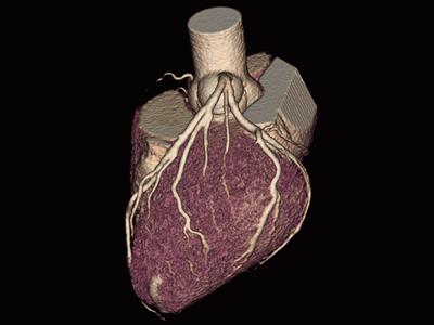 正常冠動脈1