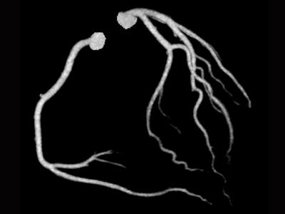 正常冠動脈2