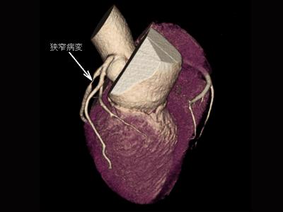 冠動脈高度狭窄病変1