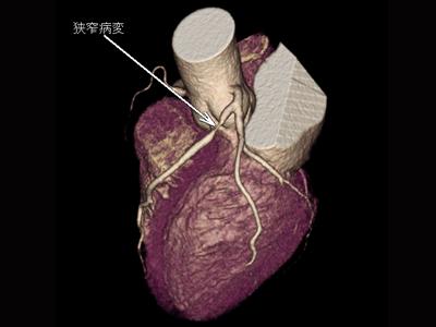 冠動脈高度狭窄病変2
