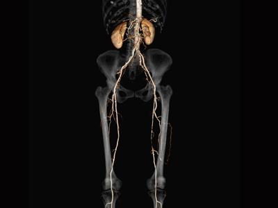 閉塞性動脈硬化症1