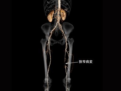 閉塞性動脈硬化症3