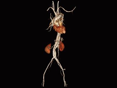 大動脈解離1