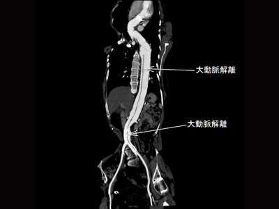 大動脈解離2
