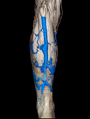 下肢静脈瘤の症状1