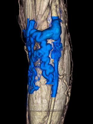 下肢静脈瘤の症状2